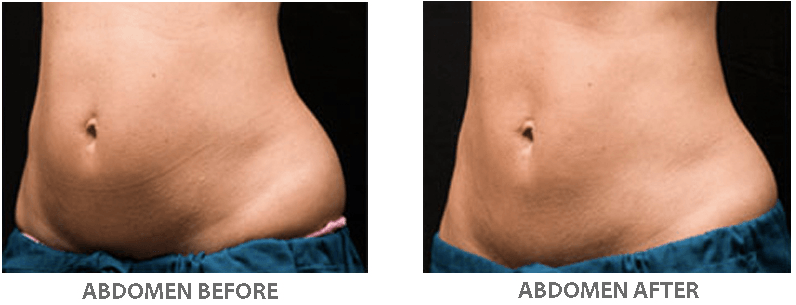 Coolsculpting Sydney Cryolipolysis Fat Freezing