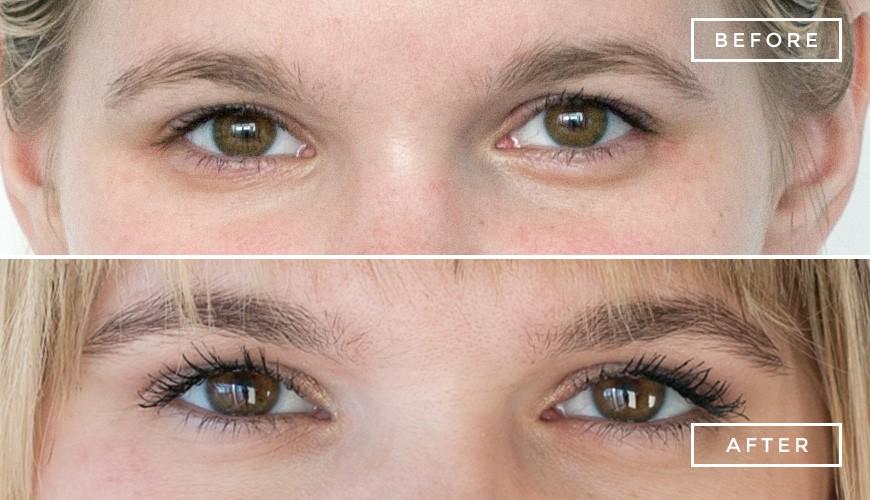 Eyelash Tinting Beauty And Laser Clinic