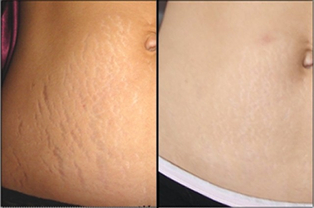 Stretch Marks Striae Treatment Beauty And Laser Clinic